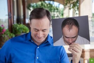 Hair Transplant Before and After 37